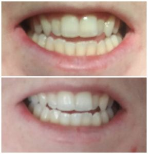 Teeth before and after using Smile Brilliant whitening system